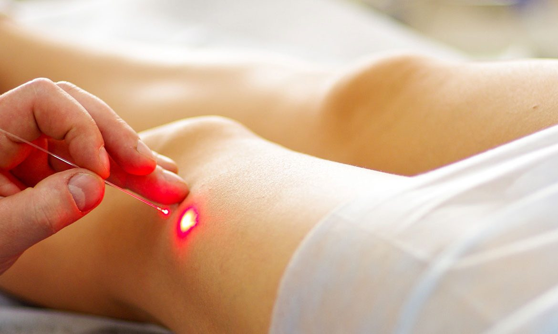 лечение варикоза, лазер